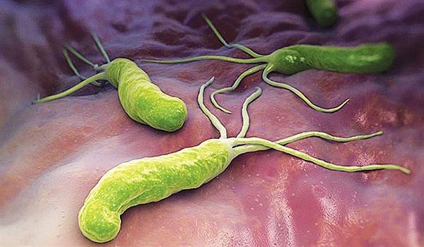 h.pylori là gì và hình ảnh minh họa h.pylori