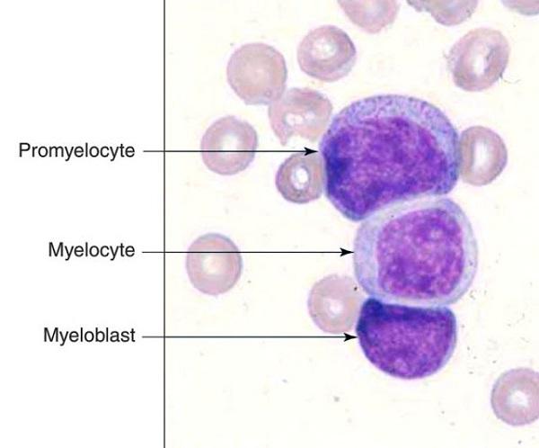 tế bào blast là gì và hình ảnh tế bào blast dòng bạch cầu