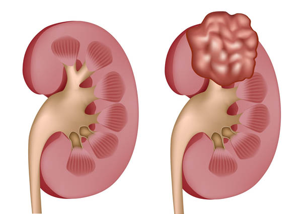tế bào carcinoma là gì và căn bệnh ung thư