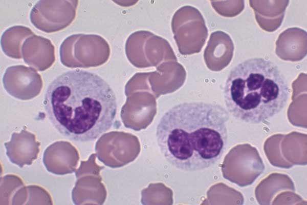 tế bào lympho là gì, bạch cầu lympho là gì