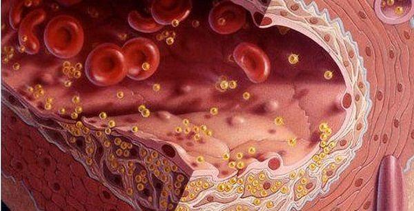chức năng của lipid huyết tương là giúp vận chuyển máu