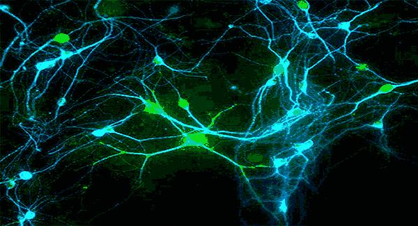 trình bày cấu tạo của nơron thần kinh và phân loại nơron thần kinh