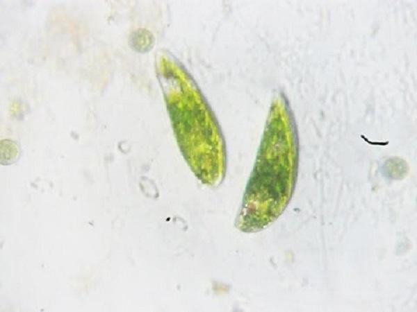 trùng roi là gì và hình ảnh trùng roi xanh