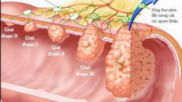 ung thư dạ dày di căn sang những bộ phận khác