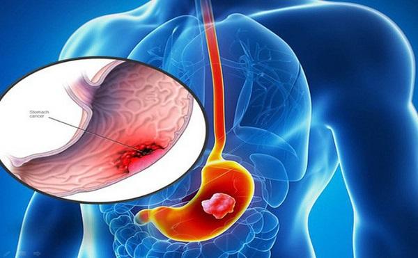 ung thư dạ dày di căn có chữa khỏi được không