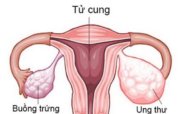 ung thư buồng trứng có chữa được không và khái niệm ung thư buồng trứng
