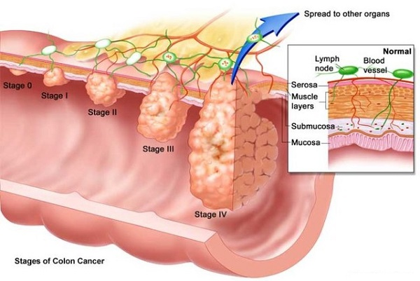 ung thư di căn sống được bao lâu và các con đường di căn của ung thư