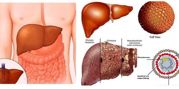 ung thư di căn sống được bao lâu và hình ảnh ung thư gan