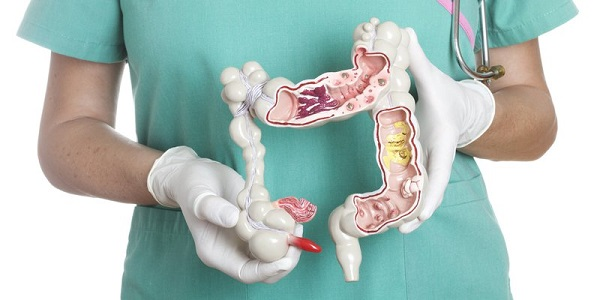 tìm hiểu crohn là bệnh gì