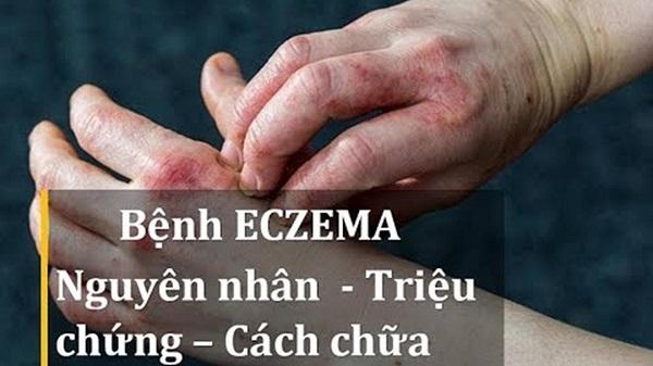 tìm hiểu bệnh eczema là gì