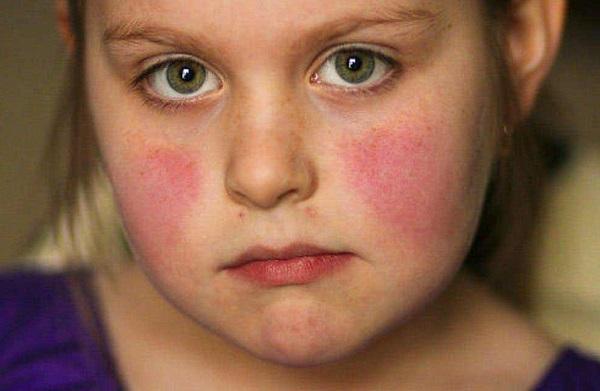 tìm hiểu lupus là bệnh gì