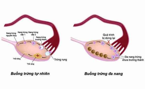 những ảnh hưởng của buồng trứng đa nang là gì