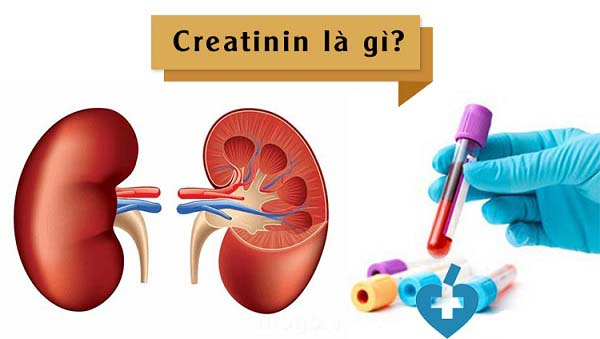 tìm hiểu xét nghiệm creatinin là gì