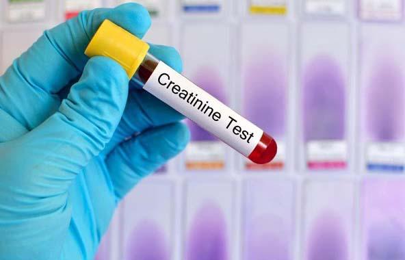 cách đọc kết quả creatinin là gì