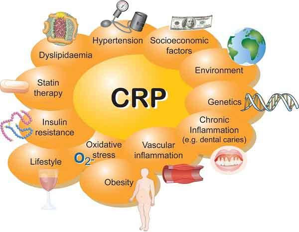 crp là gì và cách đọc kết quả crp