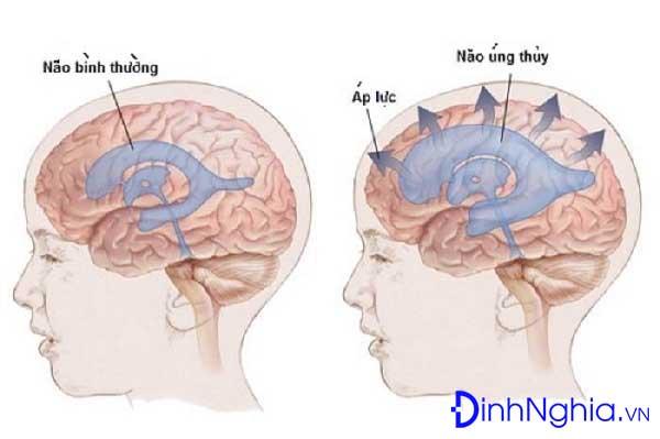 tìm hiểu về não úng thủy là bệnh gì