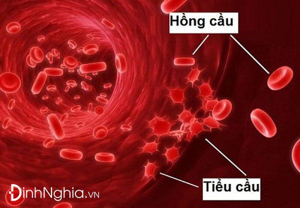 ban xuất huyết giảm tiểu cầu vô căn