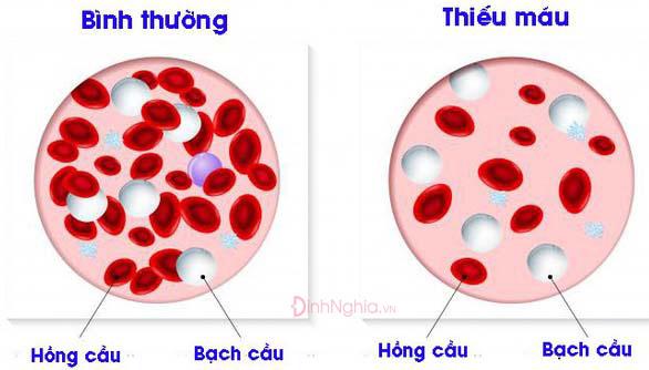 dấu hiệu giảm hồng cầu