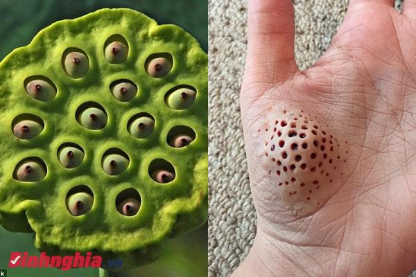 tìm hiểu trypophobia là bệnh gì và hình ảnh minh họa