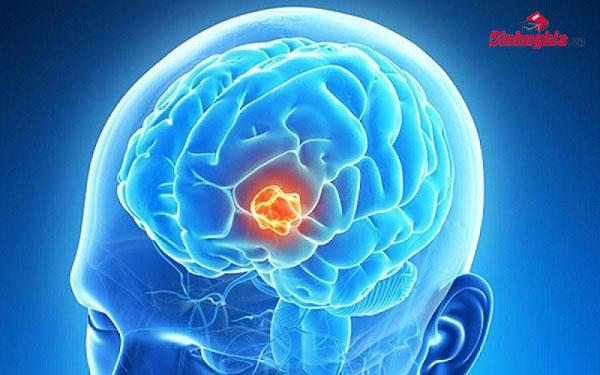 khái niệm u não là gì