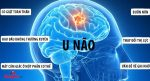 triệu chứng của u não là gì