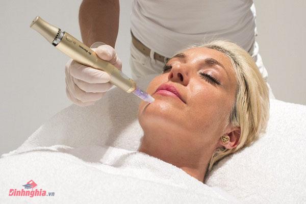 quy trình vi kim tế bào gốc là gì